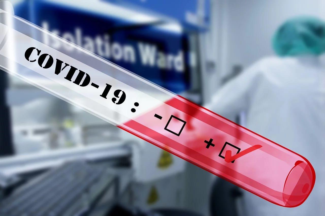 Un balance para fortalecer defensas inmunológicas del cuerpo ante el riesgo  del COVID19